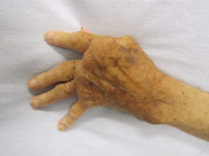 Diabetes Stiff Hand Syndrome