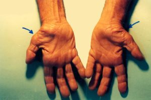 Diabetes and Carpal Tunnel Syndrome