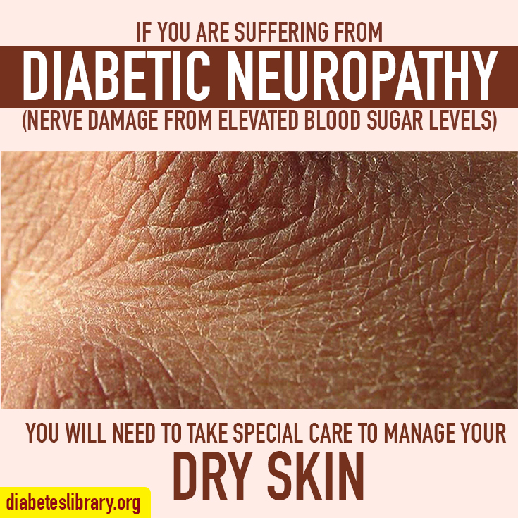 diabetic skin conditions pictures #11