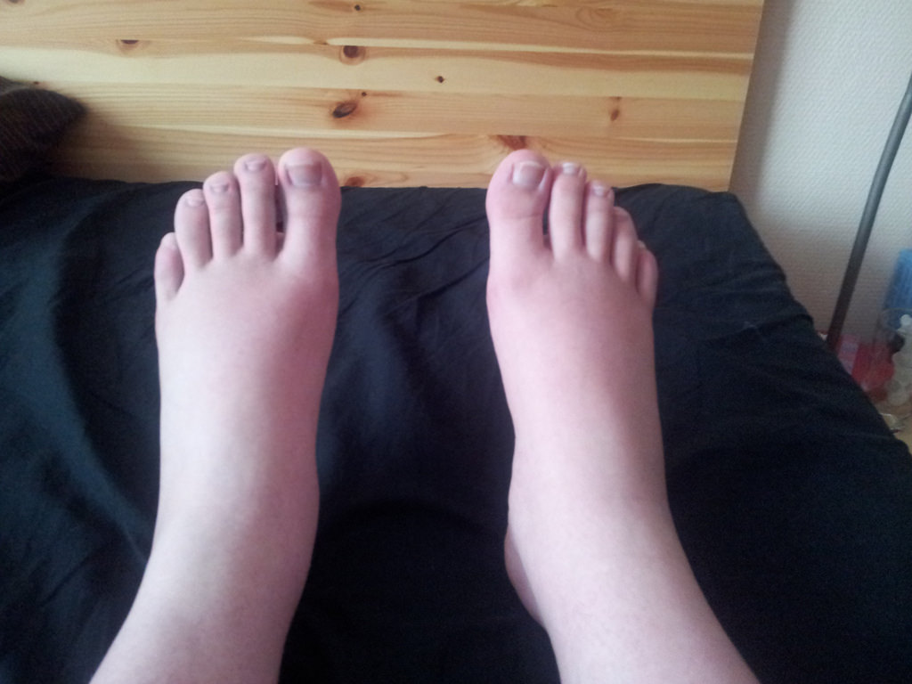 Legs Swelling Causes and Remedies